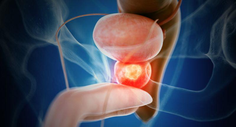 Prostatakarzinom: Magnetresonanztomografie verbessert Qualität der Biopsie